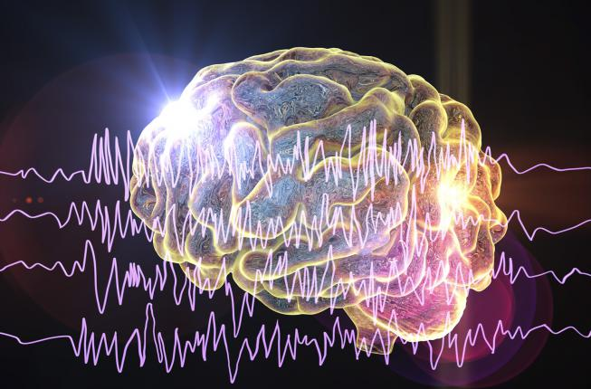 Collegamento a MOOC: Understanding Epilepsy and its Neuropsychology